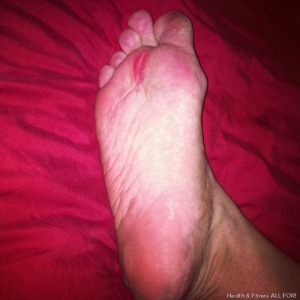 barefoot blisters
